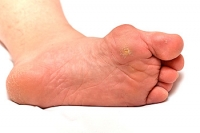 How Does a Bunion Form?