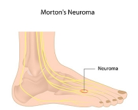 Where Does Morton's Neuroma Produce Pain?