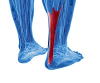 Possible Causes of Injuries That Affect the Achilles Tendon